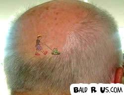 Best tattoo for Tattoo bald spot